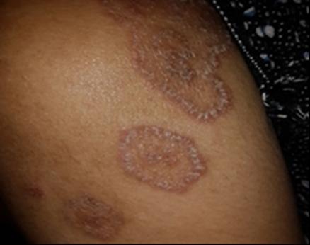 Tinea Corporis Caused by Microsporum Canis in HIV Patient